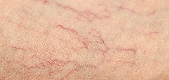 varicosites insuffisance veineuse